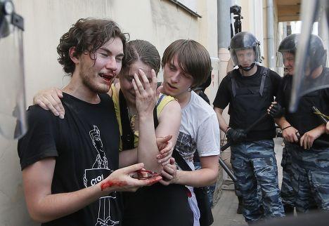 Пострадавшие участники митинга за права меньшинств в Санкт-Петербурге