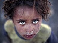 Мальчик в лагере беженцев в Йемене