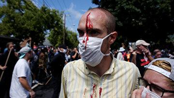 Мужчина, пострадавший во время столкновений ультраправых и их противников в Шарлоттсвилле, штат Вирджиния