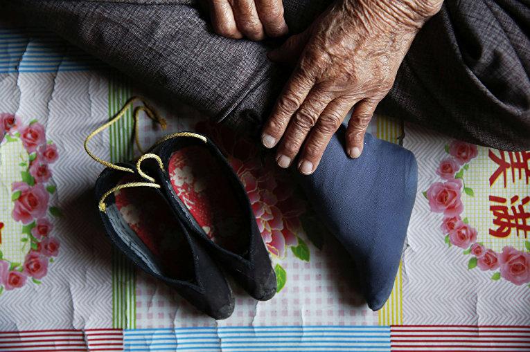 Ноги Чжан Сяньту, бывшей «женщины для утешения»