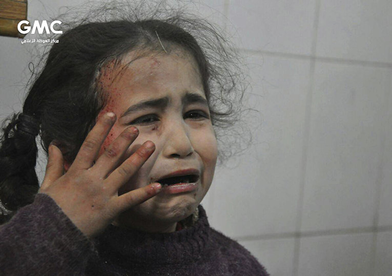 Cирийская девочка, раненная во время бомбардировок в Восточной Гуте