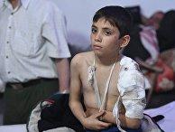 Пациент городской подземной больницы в пригороде Дамаска Думе