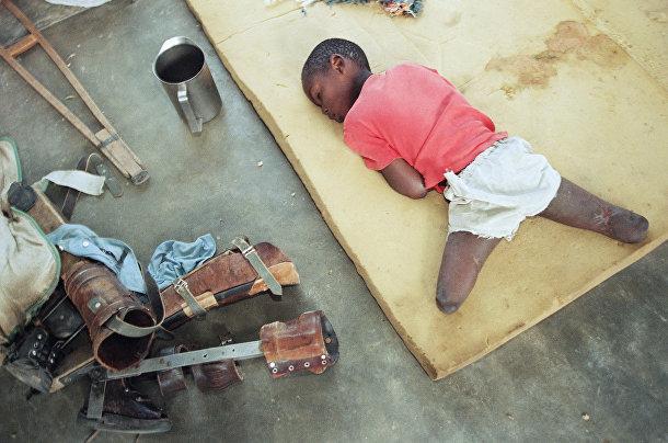 Маленький сирота с ампутированными ниже колена ногами