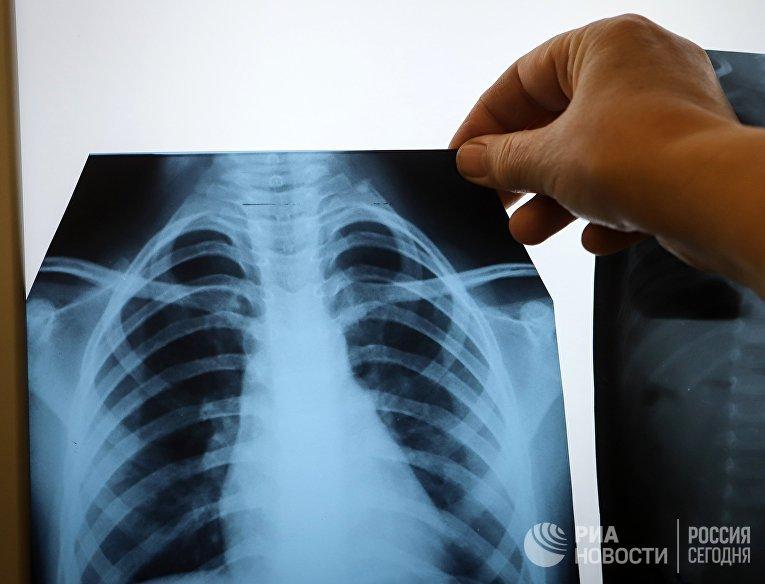 Врач с рентгеном легких
