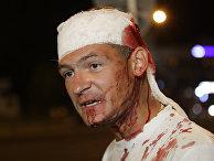 Мужчина, раненный во время столкновений с полицией в Минске, Беларусь